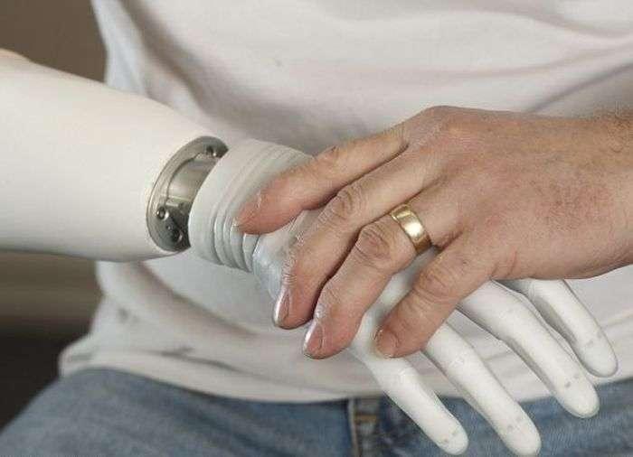 Біонічні кінцівки здатні замінити пошкоджені руки і ноги (10 фото)