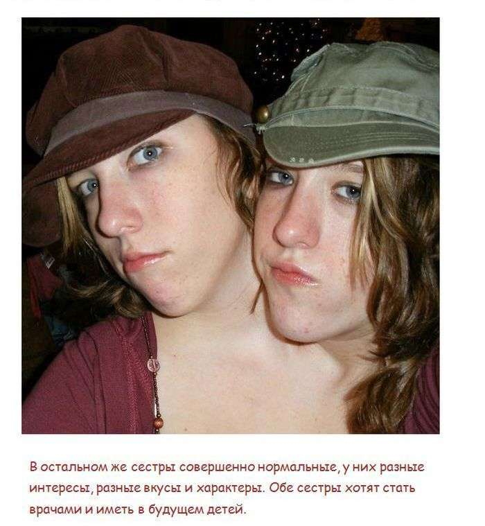 Самі незвичайні історії зрощених близнюків (5 фото)