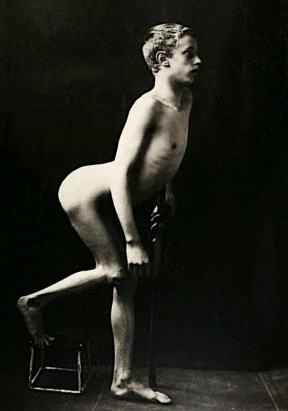 Поразительные фото пациентов из XIX века, страдающих от тяжких болезней интересное
