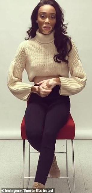 Откровенно о сокровенном: нестандартная девушка позирует в бикини для журнала