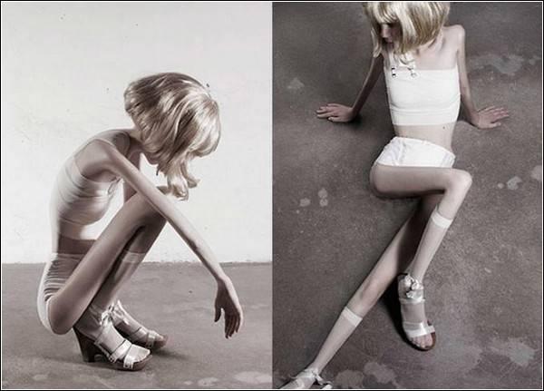 Смертельно опасная анорексия. Цифры и факты анорексия